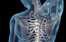 What is Scoliosis?